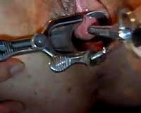 Spreading the indecent big cum-hole of my GF with a vaginal speculum